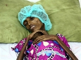 Cri dalarme du chef de lONU pour éviter la famine au Yémen
