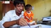 Un cas de nanisme à tête doiseau à Quang Ngai