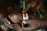 La sous-alimentation infantile fait perdre plus d'un milliard de dollars par an à l'économie de la RDC
