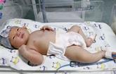 Cân Tho : un nouveau-né touché par lhypoxie cérébrale sauvé