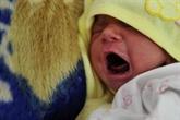 Première naissance grâce à la greffe de tissus ovariens prélevés avant la puberté