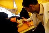 Choléra au Yémen : appel à l'aide internationale lancé par l'ONU