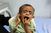 Yémen : 5.000 enfants tués ou blessés du fait de la guerre, selon l'UNICEF