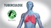 Tuberculose multirésistante: un nouveau traitement bouleverse la donne