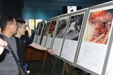 Exposition de photos sur les victimes de guerre vietnamiennes et japonaises