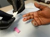 Le sida transmis par une majorité l'ignorant ou non traitée