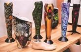 Désormais rayées, fleuries ou chamarrées, les prothèses s'affichent