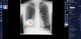 L'IA pour le traitement des patients infectés au COVID-19
