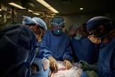 Le rein d'un porc a fonctionné chez un humain, une première mondiale
