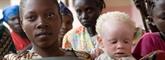 Le chef des Nations unies réitère sa solidarité envers les albinos