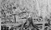 Soixante ans de la catastrophe de l'agent orange/dioxine au Vietnam : une guerre cruelle