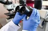 Cancer du sein : une étude s'interroge sur le rôle d'une enzyme