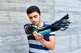 Des Lego pour prothèse : l'incroyable idée d'un jeune Andorran, né sans avant-bras